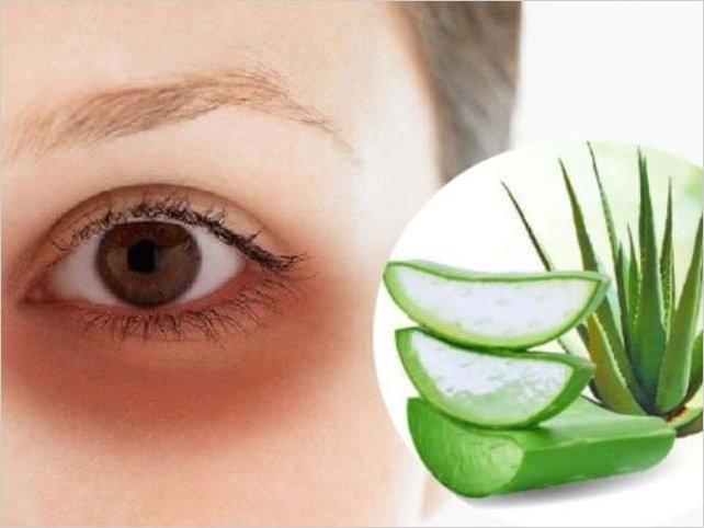 ¡Dile adiós! Descubre cómo eliminar las ojeras y las bolsas de los ojos con Aloe Vera