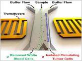 Crean un dispositivo capaz de separar las c�lulas cancerosas de la sangre